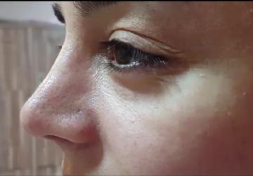 چهار ماه بعد از جراحی عمل بینی-image