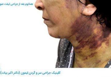 عوارض  ناشی از عمل جراحی لیفت-image