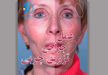 تزریق دائمی چربی صورت-image