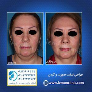 جراحی لیفت صورت و گردن