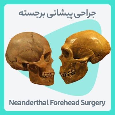 جراحی پیشانی برجسته