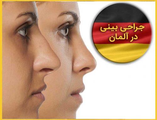 می دانستید بینی عنصری منحصر به فرد در چهره شماست؟